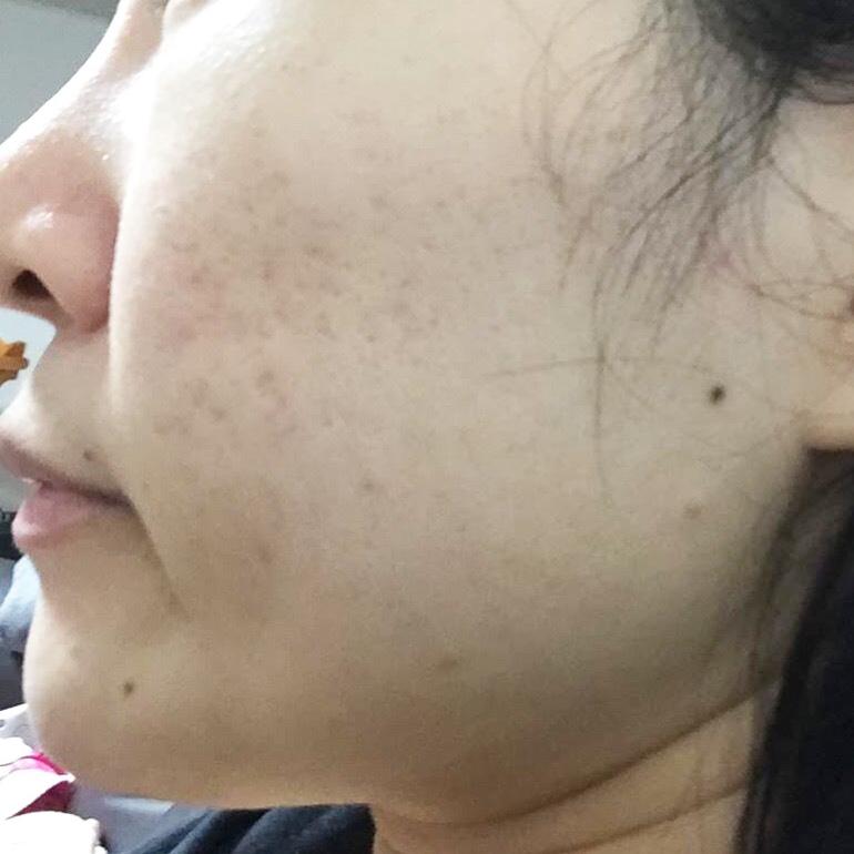 ニキビ治療・ニキビ跡治療 (ピコフラクショナルレーザー+高濃度成長因子導入パック(全顔)) 施術前