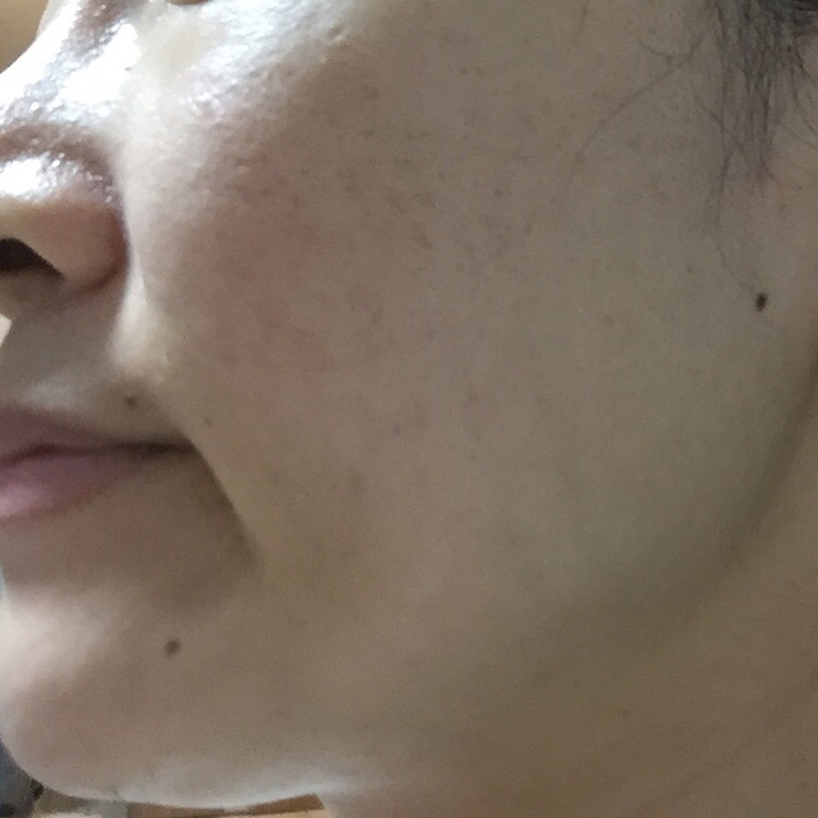 ニキビ治療・ニキビ跡治療 (ピコフラクショナルレーザー+高濃度成長因子導入パック(全顔)) 施術後