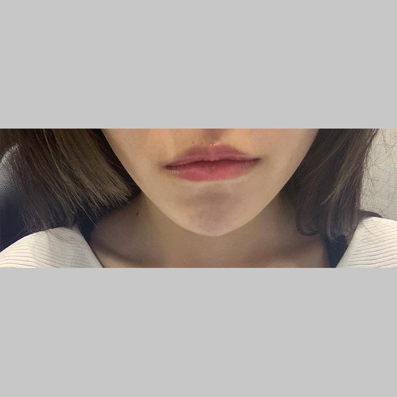 顔の整形(輪郭形成) (顎ヒアルロン酸) 施術後