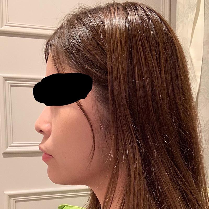 顔の整形(輪郭形成) (ニンジン注射5ml) 施術前