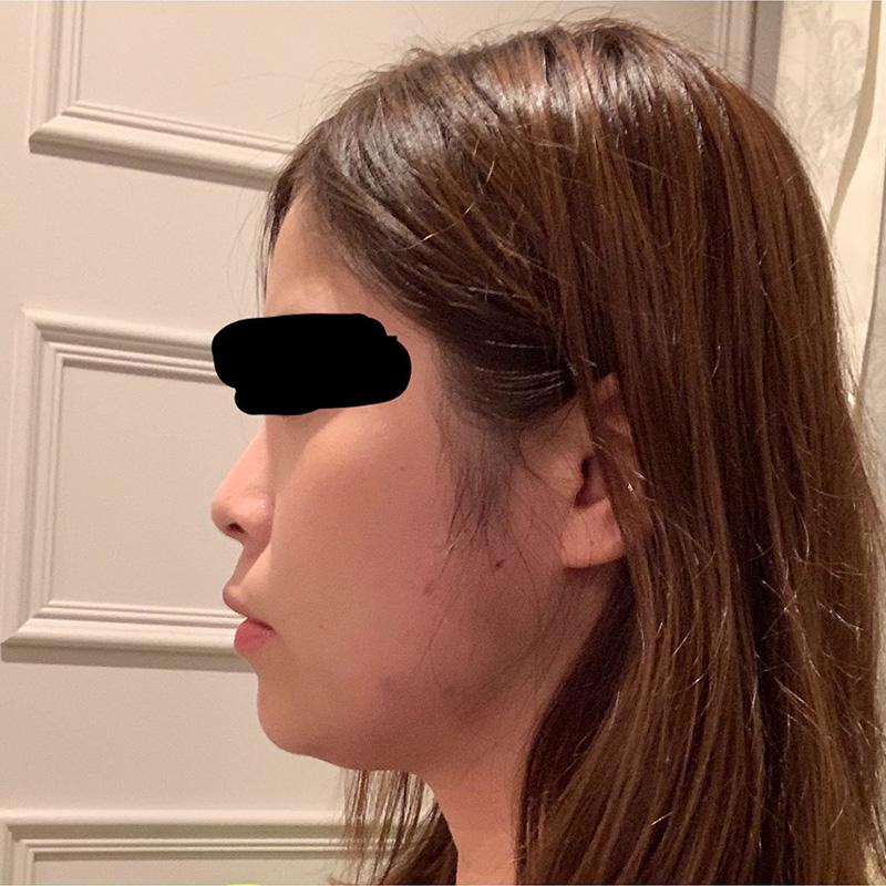 顔の整形(輪郭形成) (ニンジン注射5ml) 施術後