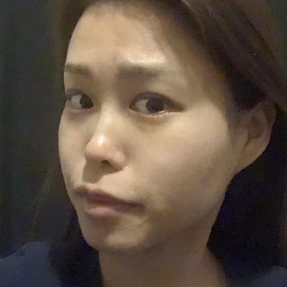 鼻の整形 (プロテーゼ、3D形成法、鼻中隔延長) 施術前