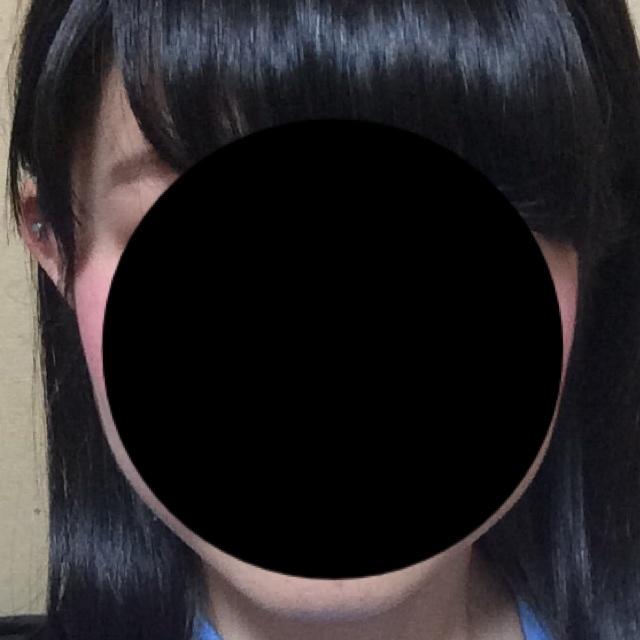 顔の整形(輪郭形成) (エラボトックス) 施術前