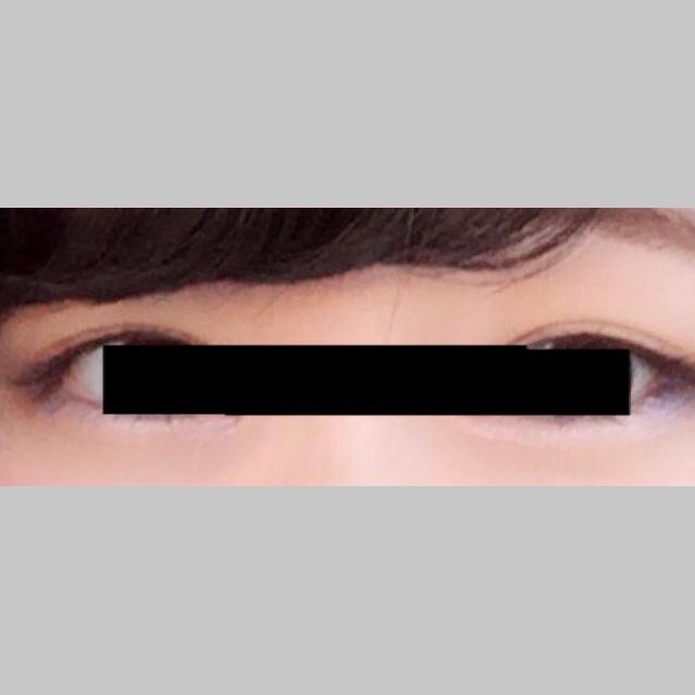 目・二重の整形 (二重術ナチュラル法) 施術前
