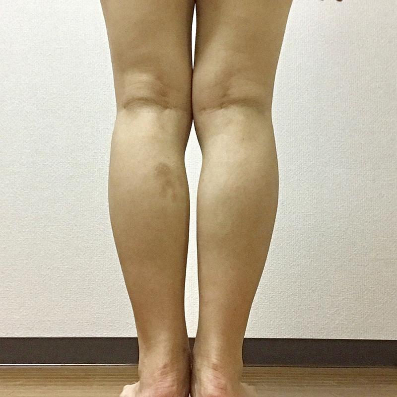 痩身・メディカルダイエット (ボトックス(韓国製)) 施術前