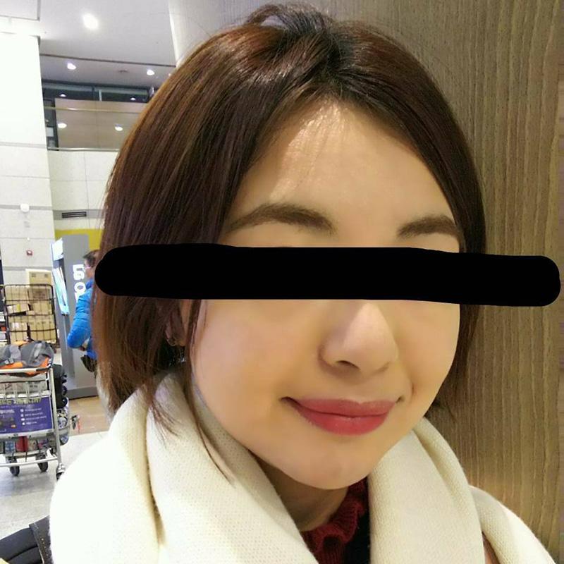 顔のシワ・たるみ (美肌アモーレ+脂肪溶解注射) 施術前