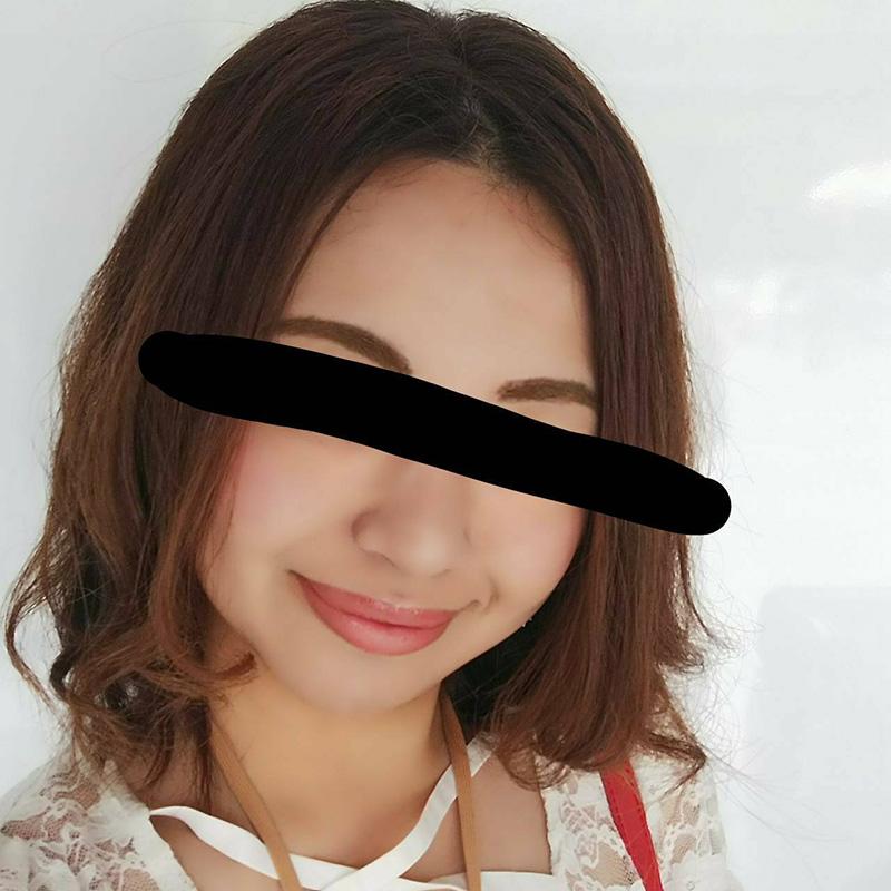 顔のシワ・たるみ (美肌アモーレ+脂肪溶解注射) 施術後
