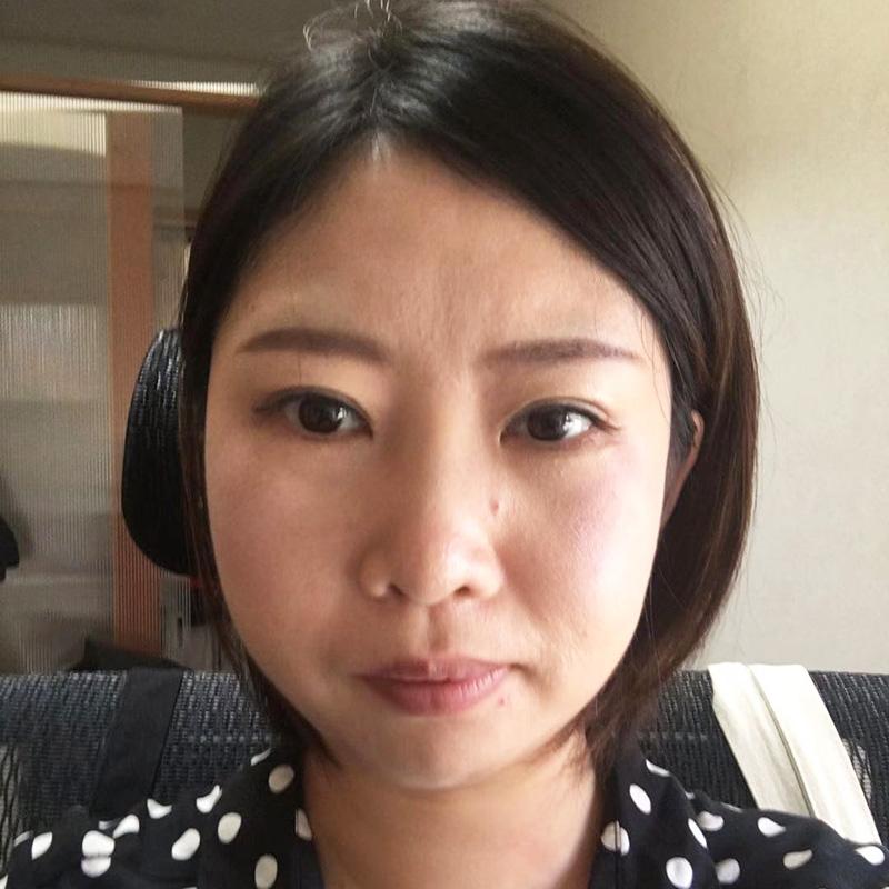 顔の整形(輪郭形成) (顎修正、プロテーゼ挿入コース) 施術前