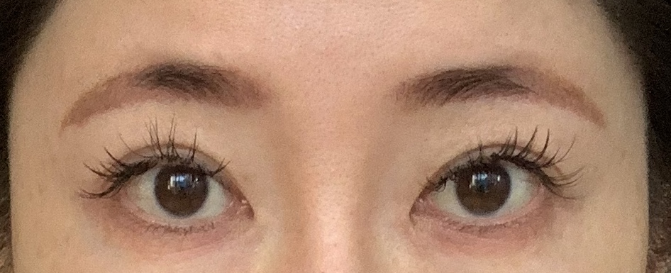 目元の整形、目のクマ治療 (眉下リフト スーパーナチュラル) 施術前