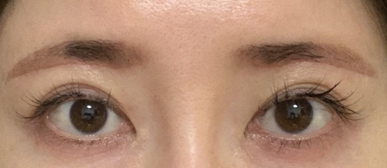 目元の整形、目のクマ治療 (眉下リフト スーパーナチュラル) 施術後