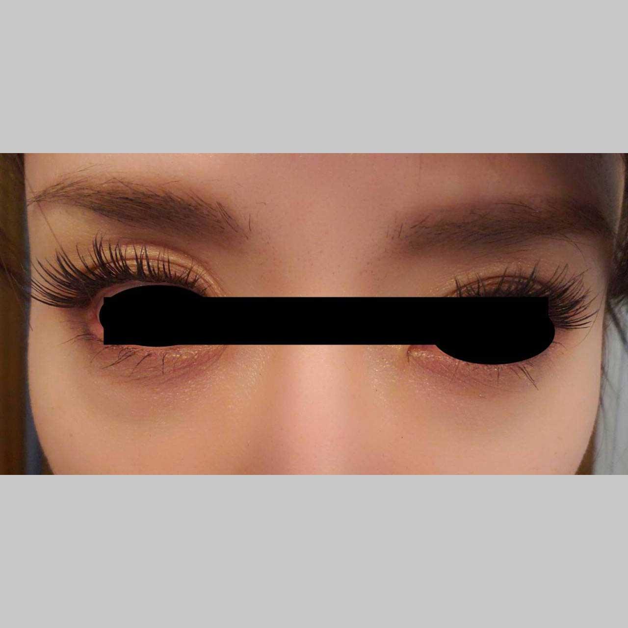 目元の整形、目のクマ治療 (ヒアルロン酸注入(ビタールライト0.3cc)+マイクロカニューレ2本) 施術前