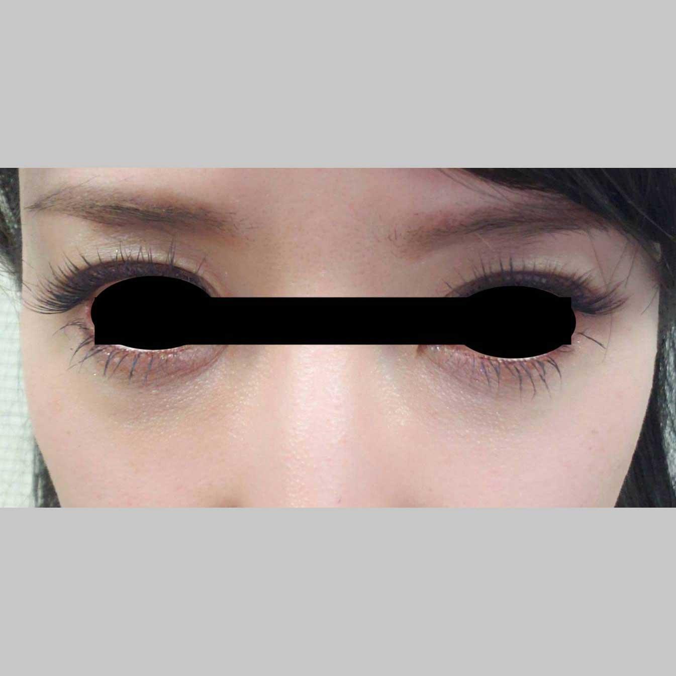 目元の整形、目のクマ治療 (ヒアルロン酸注入(ビタールライト0.3cc)+マイクロカニューレ2本) 施術後