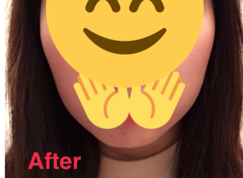 顔の整形(輪郭形成) (エラボツリヌストキシン) 施術後