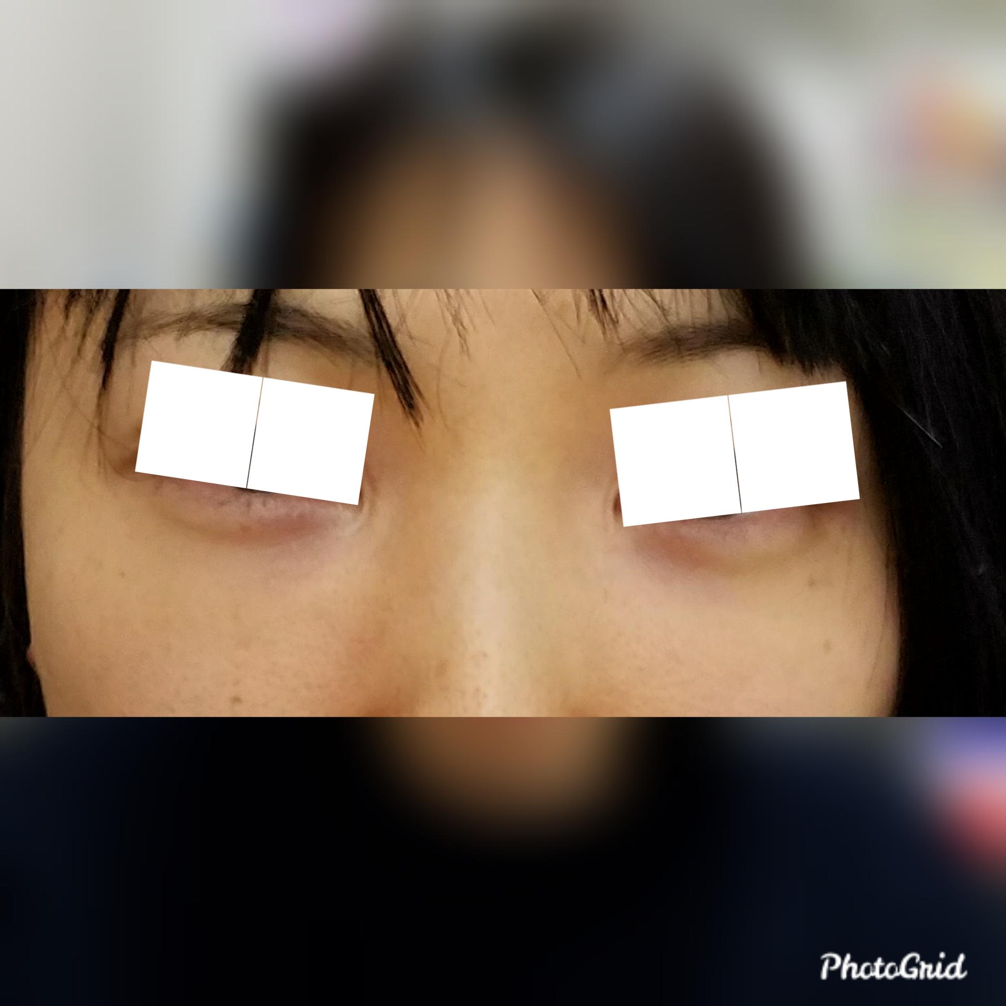 目元の整形、目のクマ治療 (ヒアルロン酸注射) 施術前