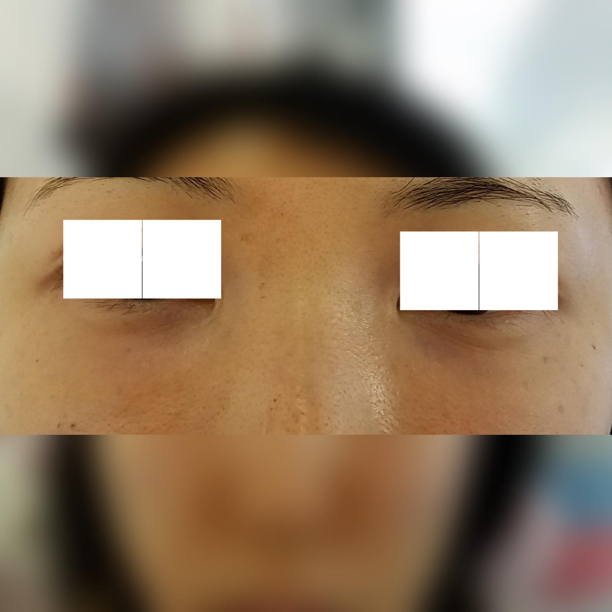 目元の整形、目のクマ治療 (ヒアルロン酸注射) 施術後