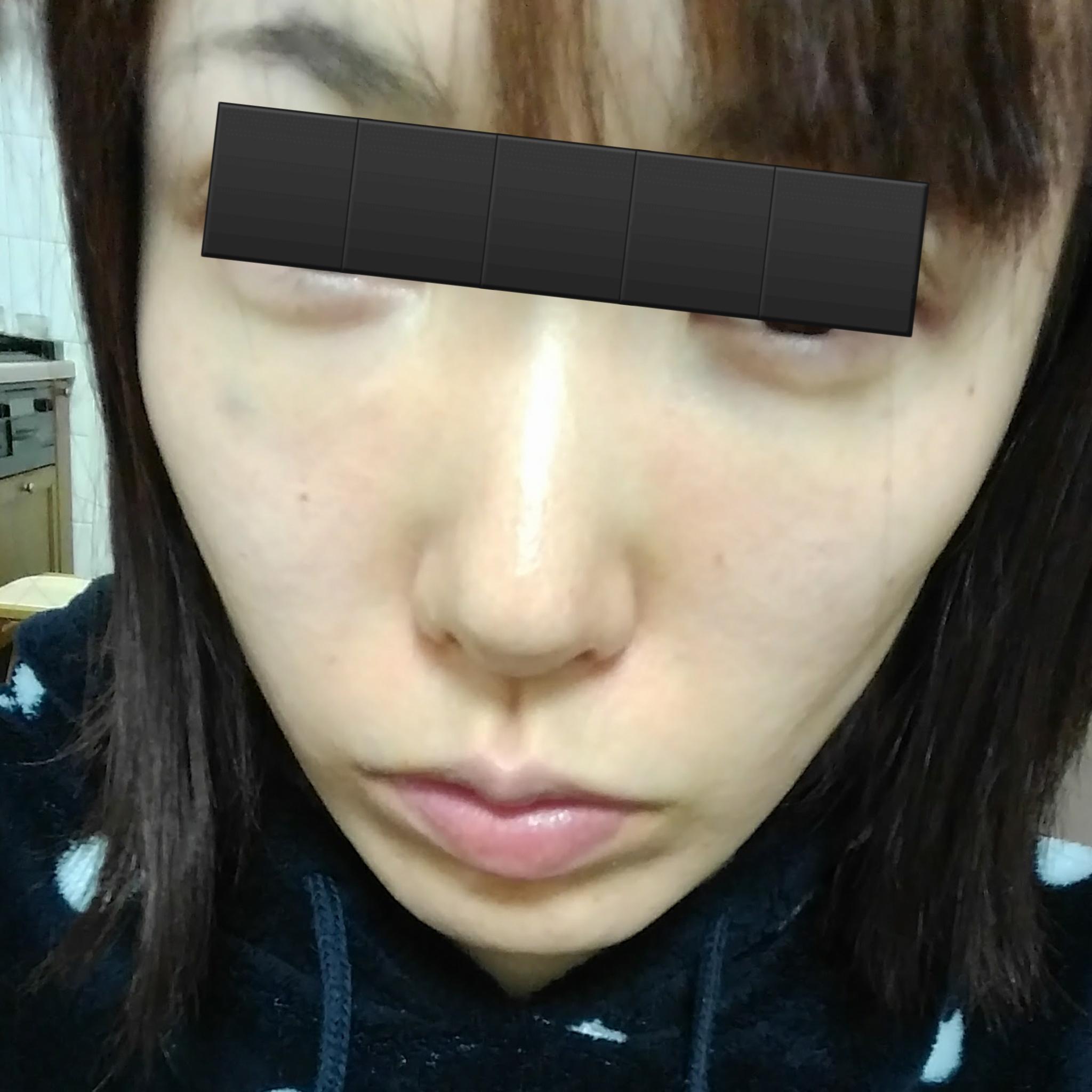 若返り・アンチエイジング・美容点滴 (プレミア厶PRP皮膚再生療術) 施術後