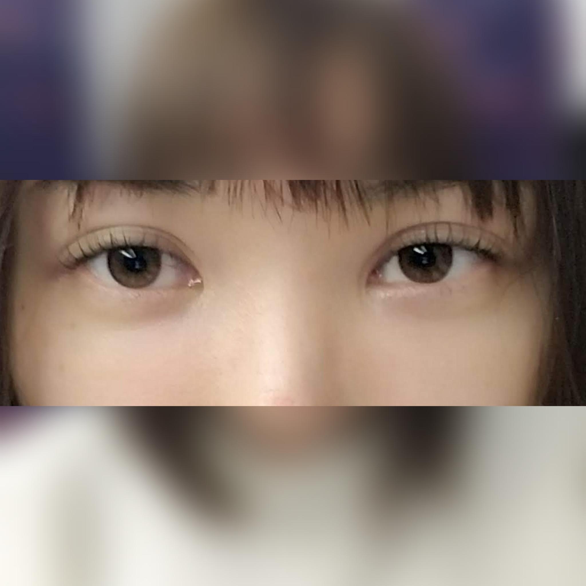 目・二重の整形 (不適切な埋没法の糸の除去) 施術前