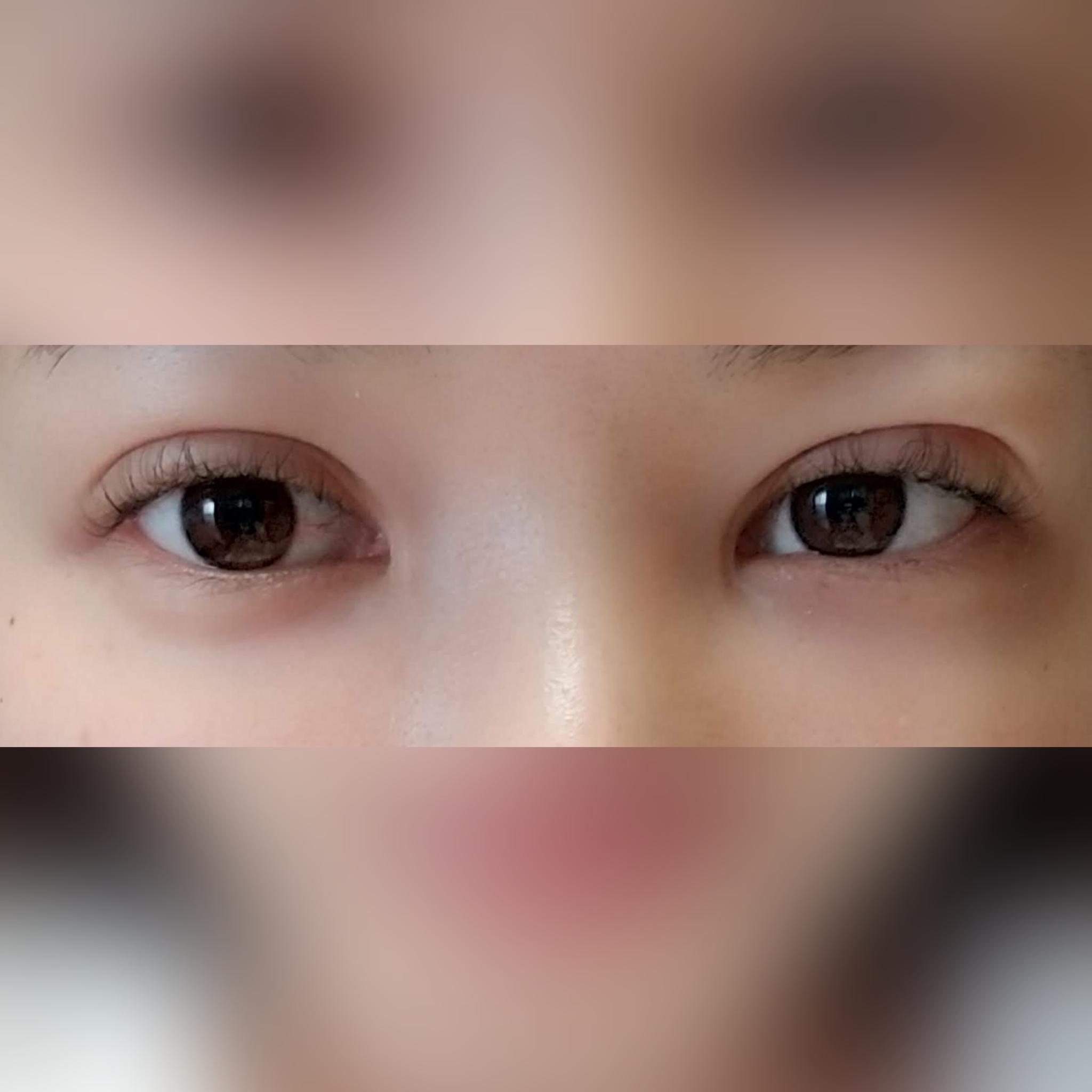 目・二重の整形 (不適切な埋没法の糸の除去) 施術後