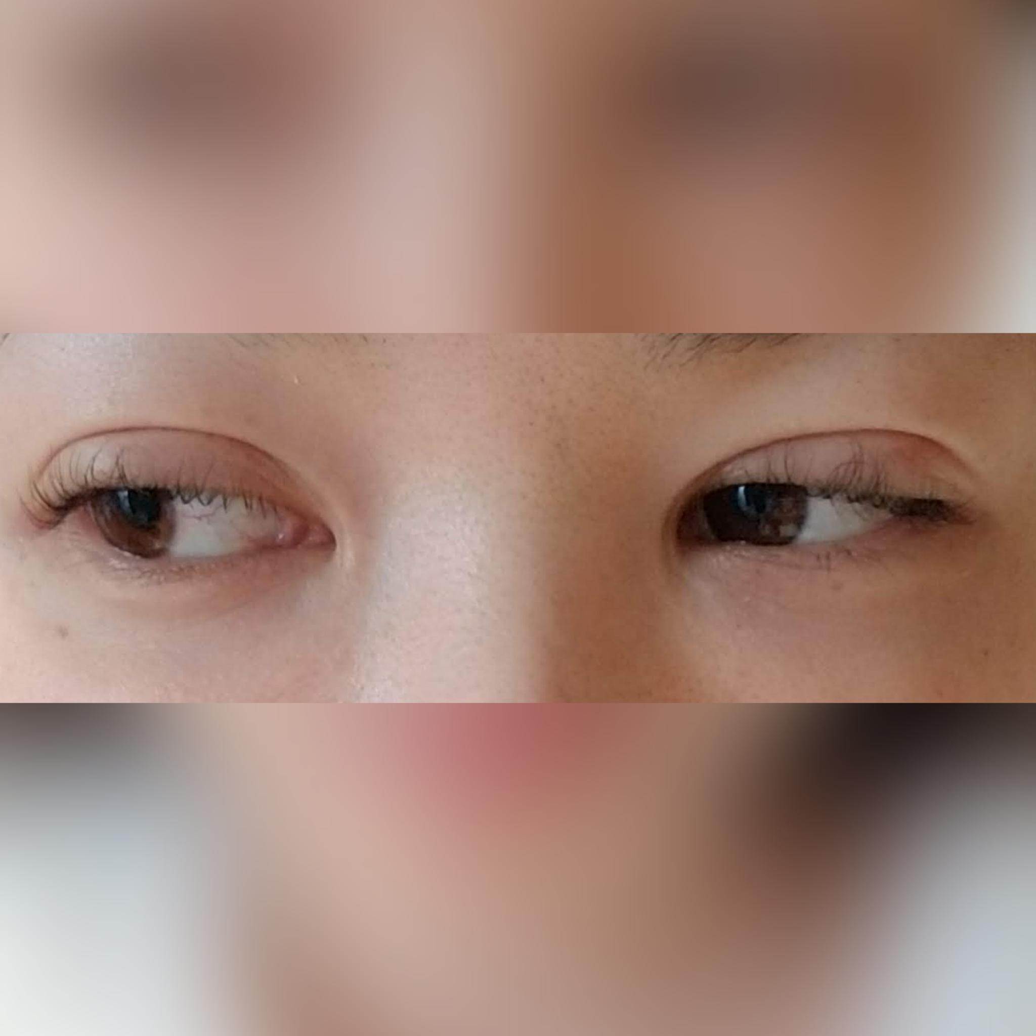 目・二重の整形 (挙筋法) 施術後