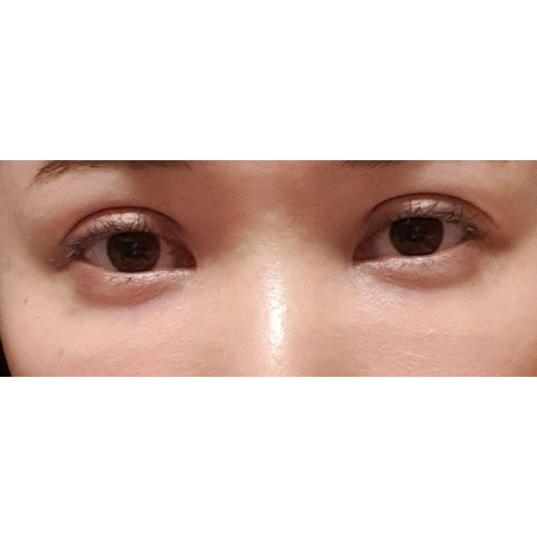 目元の整形、目のクマ治療 (リジュランi) 施術前