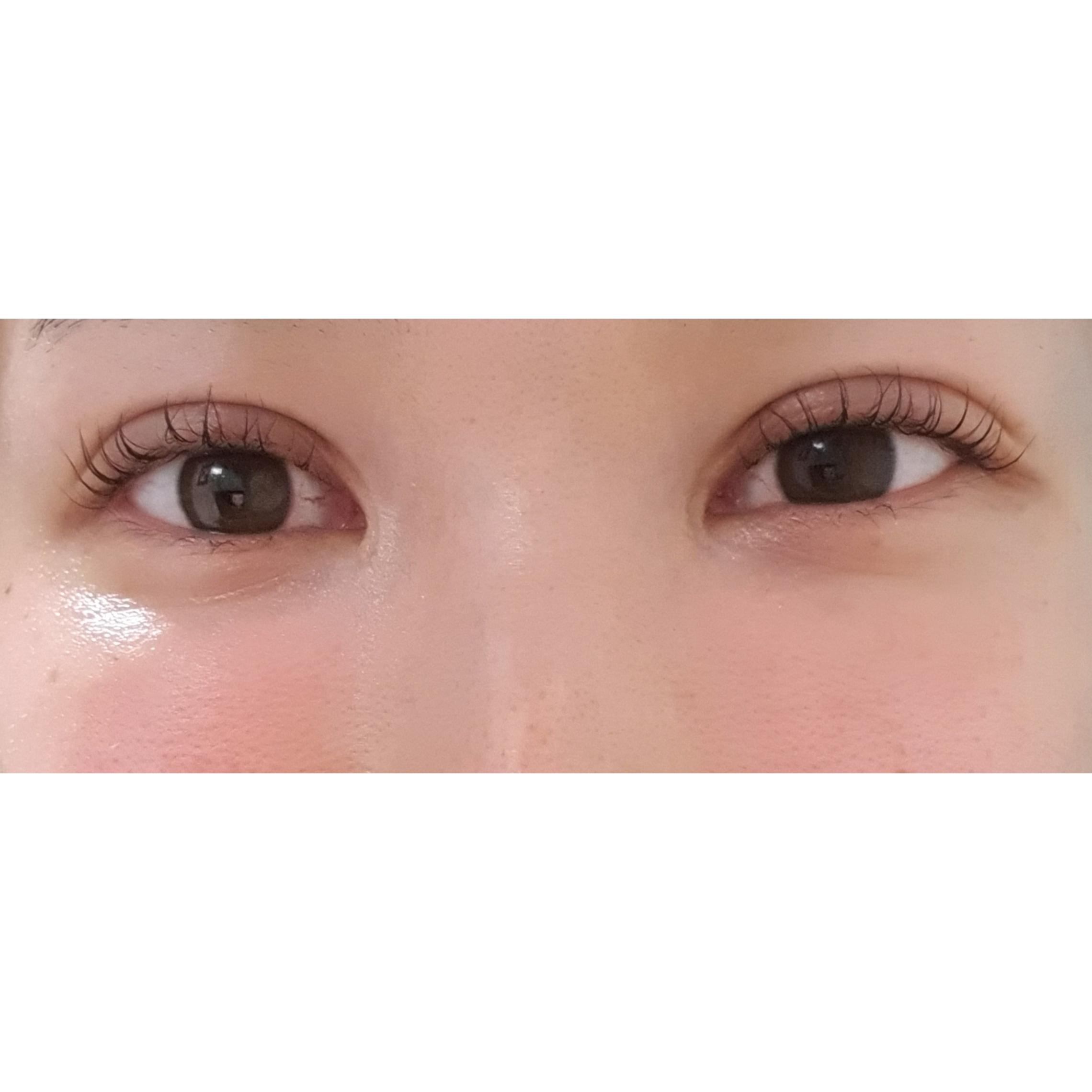目元の整形、目のクマ治療 (リジュランi) 施術後