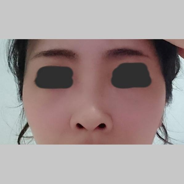 鼻の整形 (鼻根ヒアルロン酸(クレヴィエル)注入) 施術前