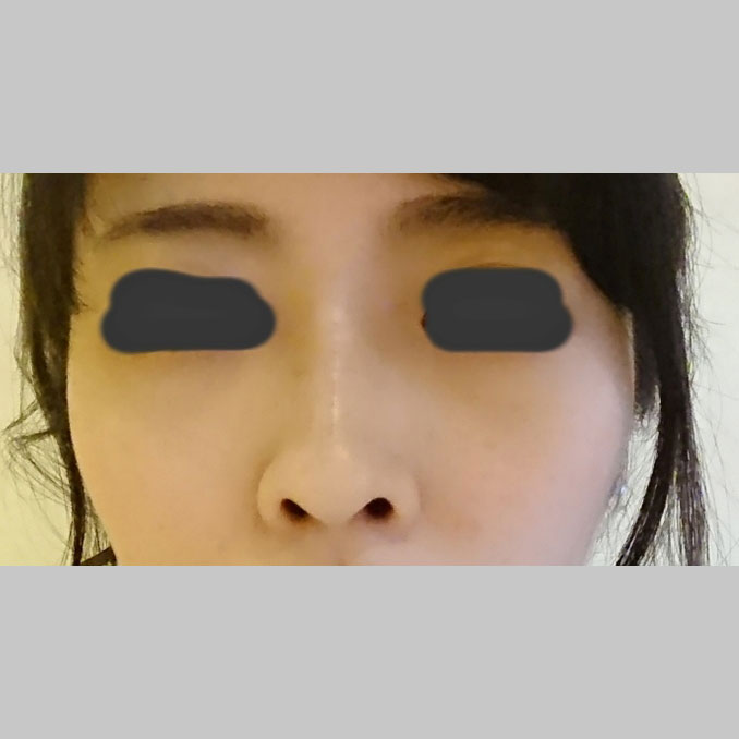 鼻の整形 (鼻根ヒアルロン酸(クレヴィエル)注入) 施術後