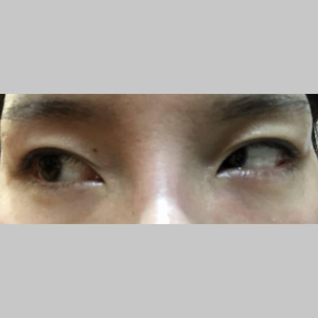 目・二重の整形 (二重切開) 施術後