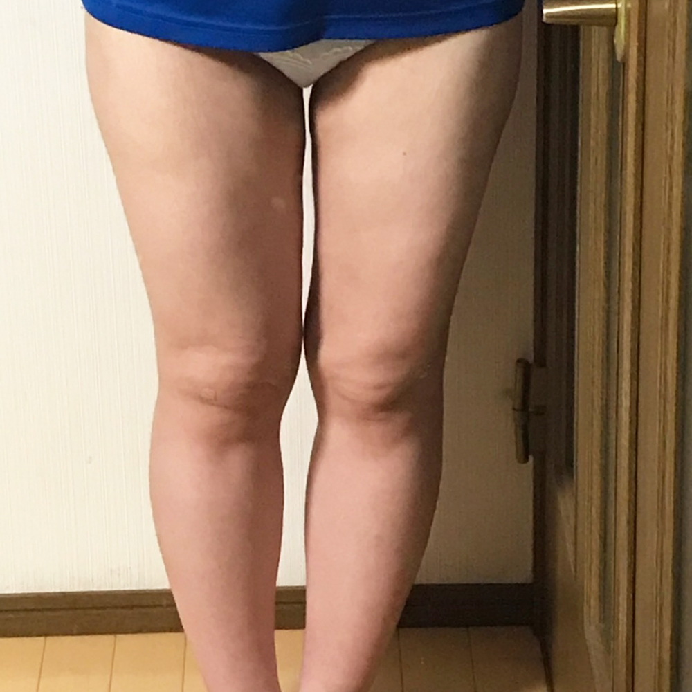 脂肪吸引 (脂肪吸引) 施術後