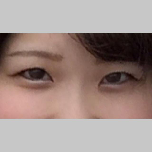 目・二重の整形 (マイクロメソッド+α) 施術前