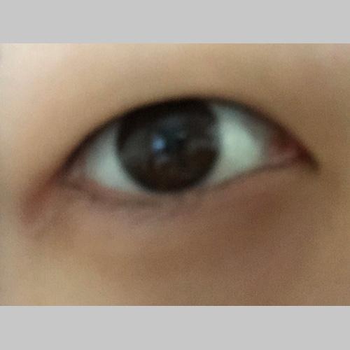 目・二重の整形 (二重切開、目頭切開) 施術前