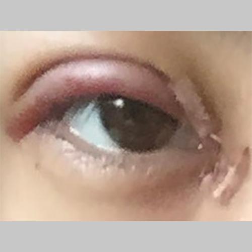 目・二重の整形 (二重切開、目頭切開) 施術後