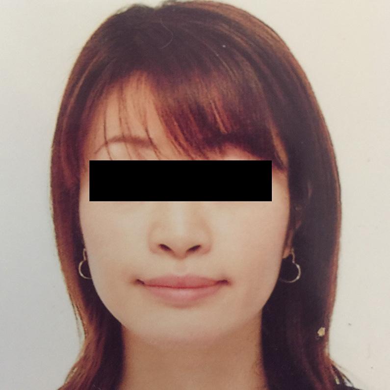 鼻の整形 (小鼻縮小) 施術前
