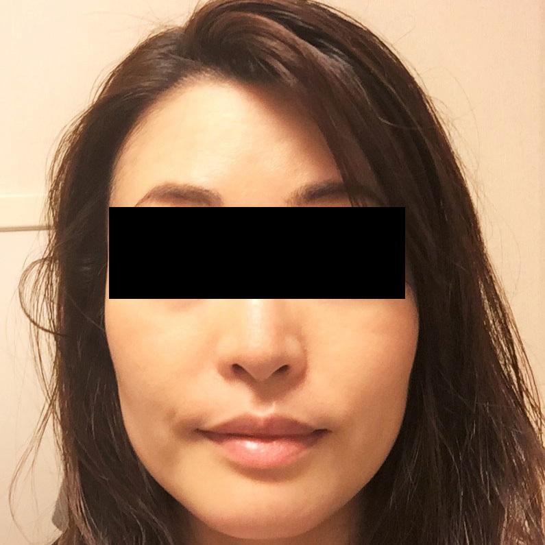 鼻の整形 (小鼻縮小) 施術後
