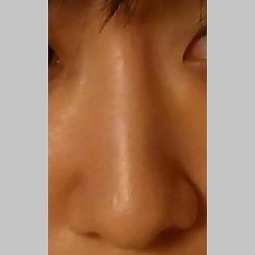 鼻の整形 (小鼻縮小(中間法)) 施術前
