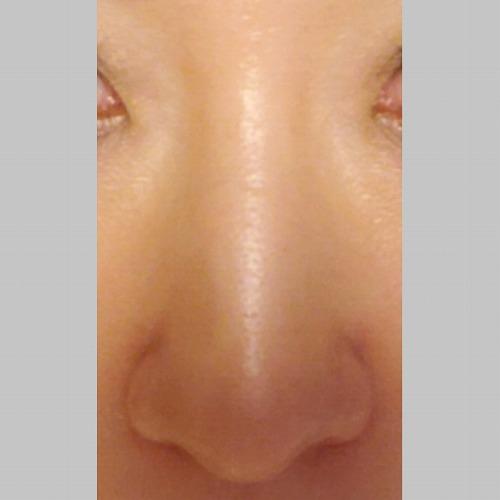 鼻の整形 (小鼻縮小(中間法)) 施術後