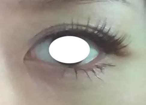 目元の整形、目のクマ治療 (目尻切開) 施術前