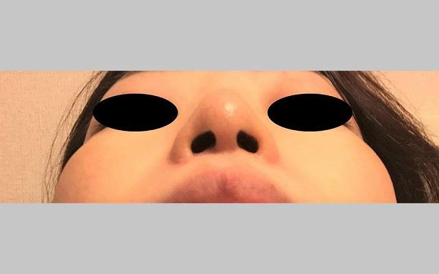 鼻の整形 (小鼻縮小術 修正) 施術後