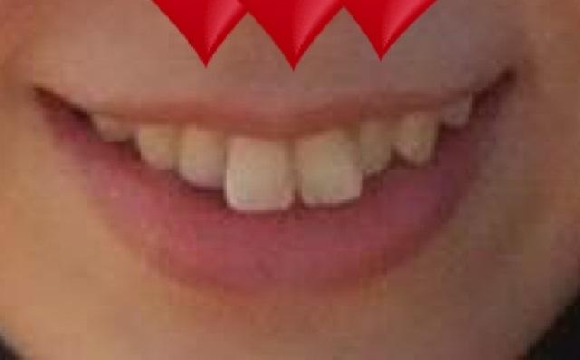 審美歯科 (インビザライン) 施術前