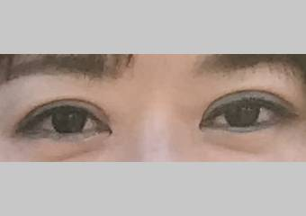 目・二重の整形 (眼瞼下垂 (挙筋短縮法)) 施術後