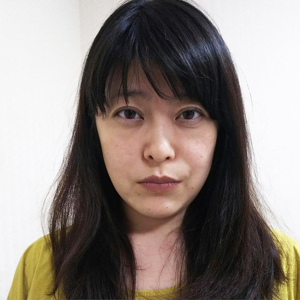 顔のシワ・たるみ (プレミアムPRP皮膚再生療法) 施術前