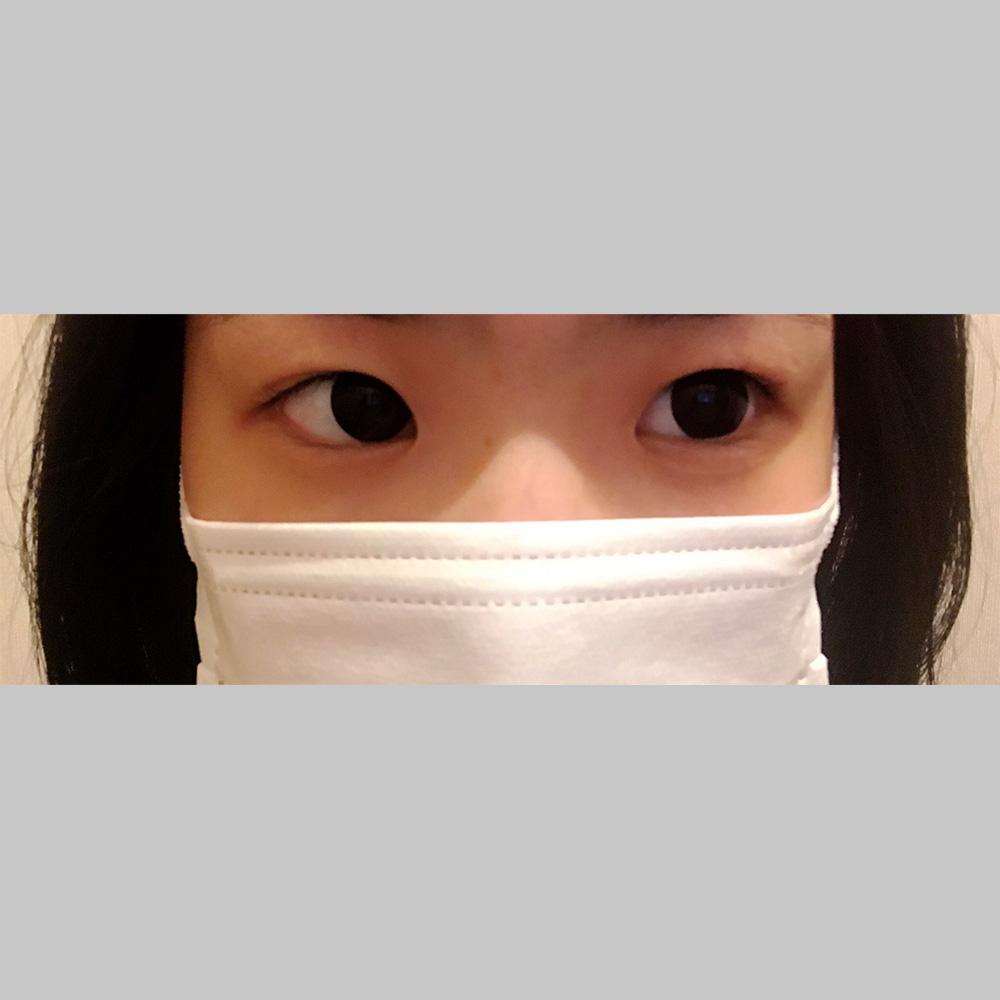 目元の整形、目のクマ治療 (若帰り(ヒアルロン酸)) 施術前
