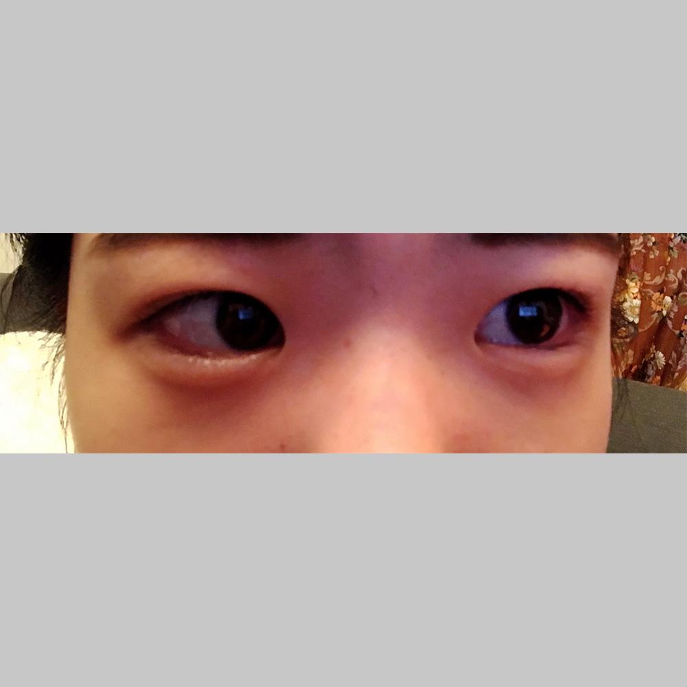 目元の整形、目のクマ治療 (若帰り(ヒアルロン酸)) 施術後