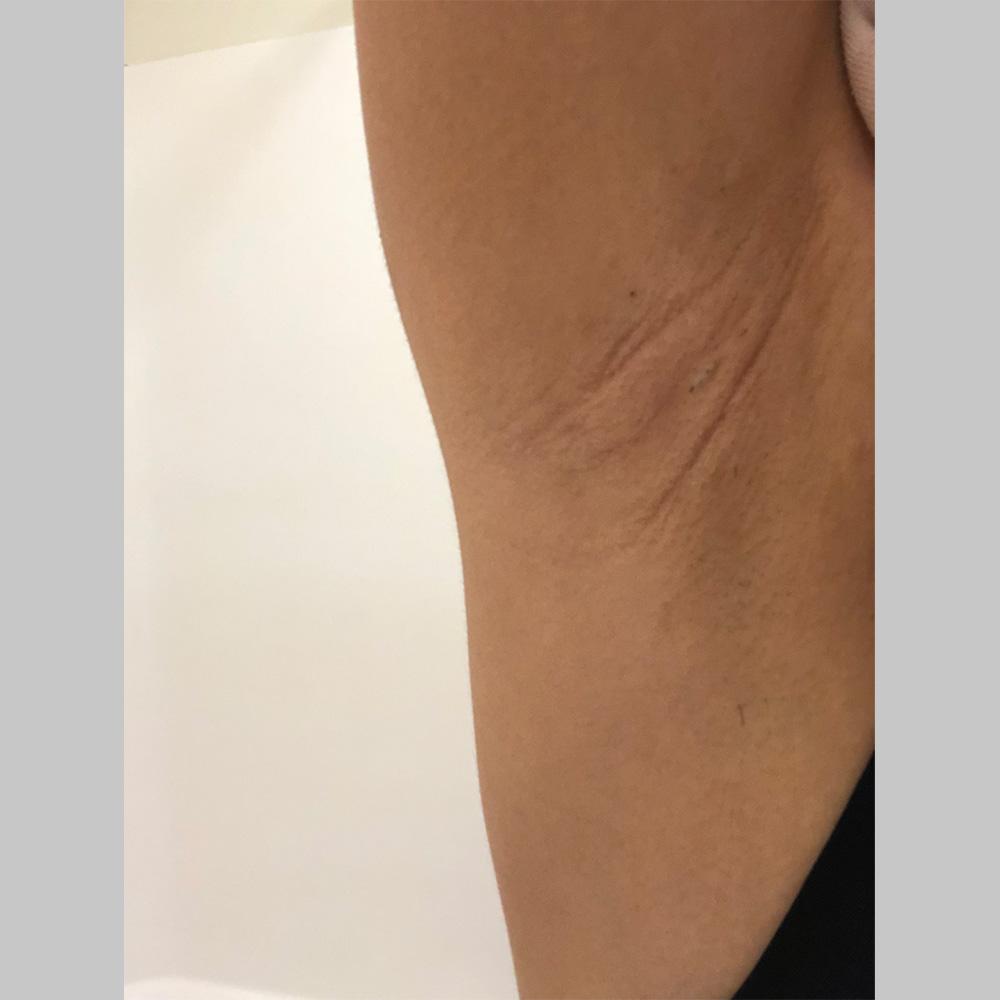 わきが手術、多汗症治療 (ミラドライ両脇 モニター募集) 施術前