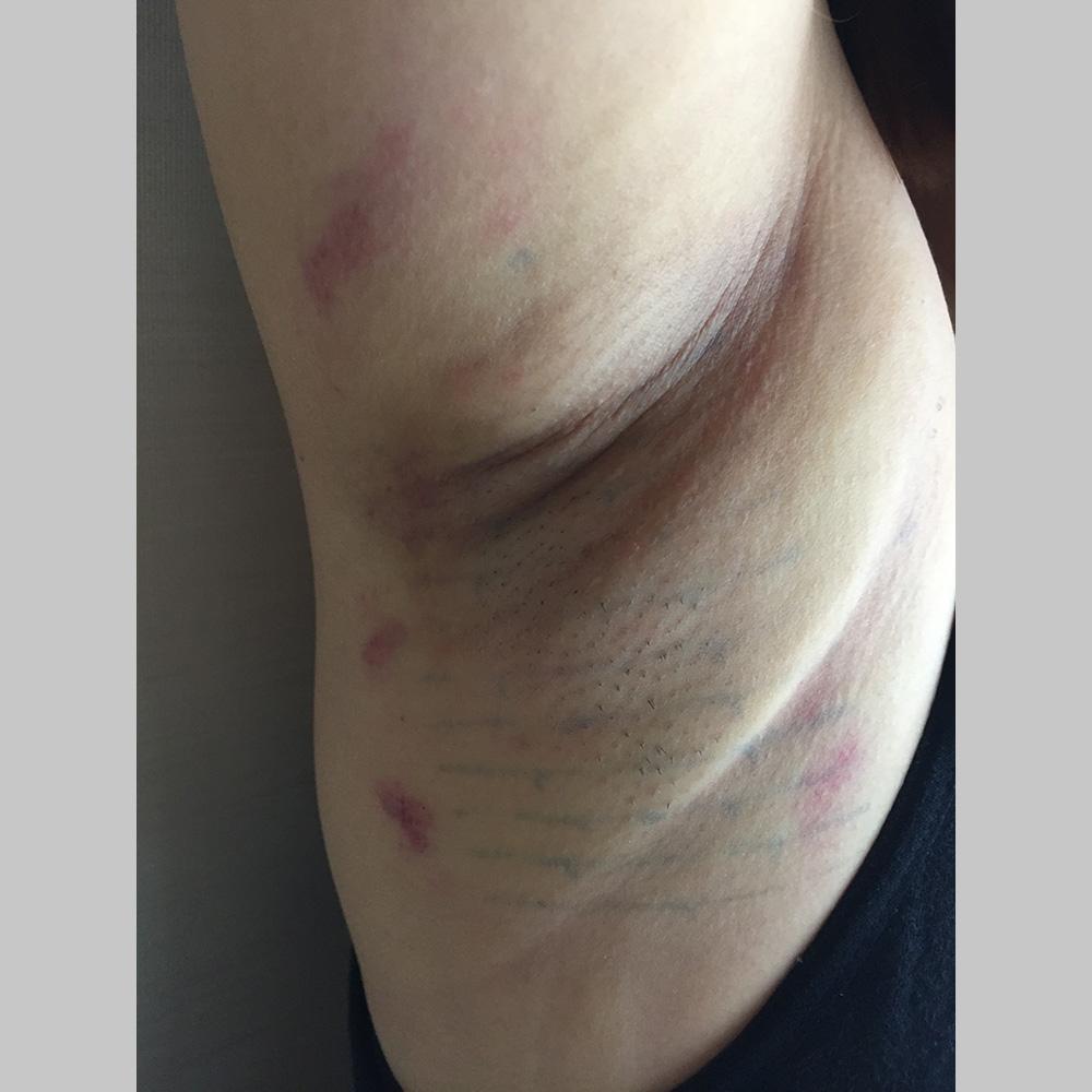 わきが手術、多汗症治療 (ミラドライ両脇 モニター募集) 施術後