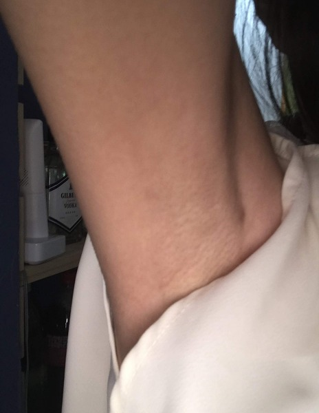 わきが手術、多汗症治療 (根こそぎベイザーシェービング法) 施術前