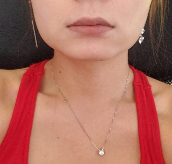 顔の整形(輪郭形成) (エラボトックス(アラガン)) 施術前