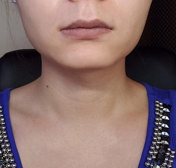 顔の整形(輪郭形成) (エラボトックス(アラガン)) 施術後