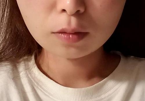 顔の整形(輪郭形成) (エラボトックス注射) 施術前