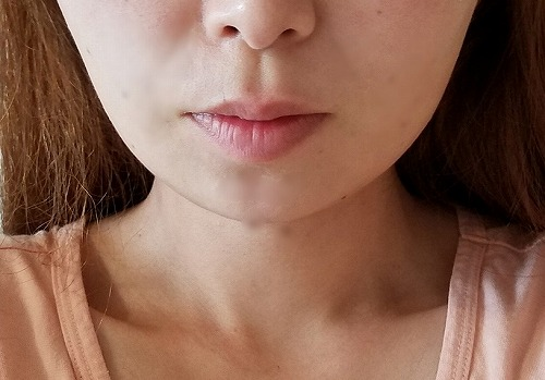 顔の整形(輪郭形成) (エラボトックス注射) 施術後